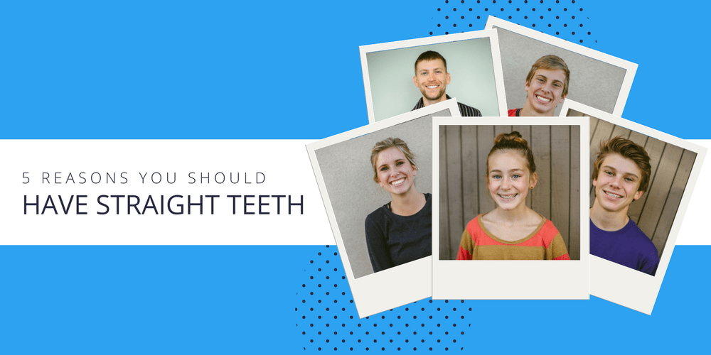 5-reasons-you-should-have-straight-teeth-1