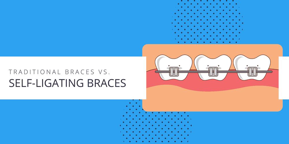 traditional-braces-versus-self-ligating-braces-2