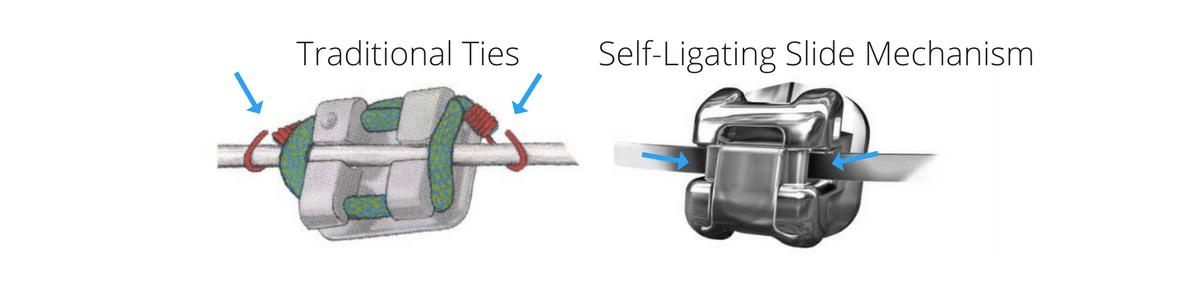 traditional-vs-self-ligating-braces