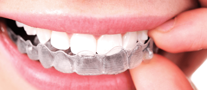 Invisalign Bend & Redmond Oregon